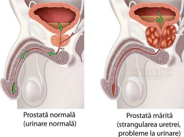 prostatita cronica cauze