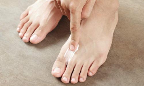 cel mai bun tratament pt ciuperca piciorului