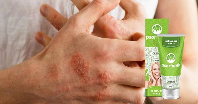 psorimilk romania crema tratament psoriazis